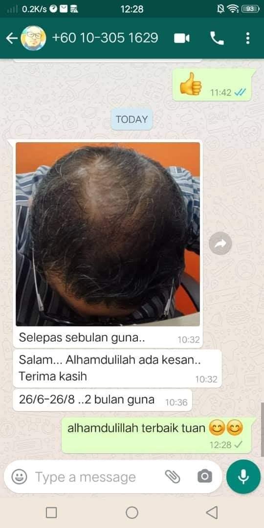 Rambut Gugur - Pelo Balm Testimonial 2